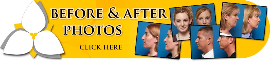 Before and After Photos - Otoplasty