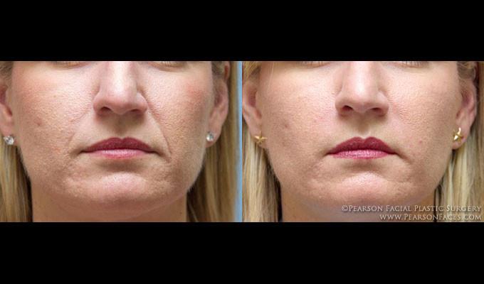Juvederm, Bellafill, Radiesse, Restylane, Wrinkles and Lip